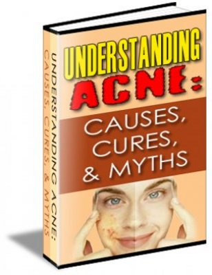Product picture Understanding Acne: Causes, Cures & Myths